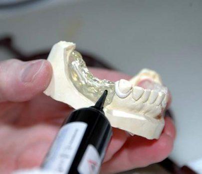 Odontotecnico: quanto guadagna e come diventarlo?